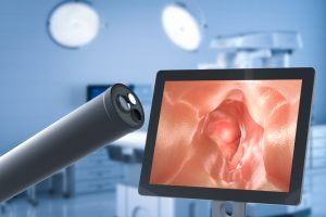 Covid 19 May Increase Colon Cancer Death Rates